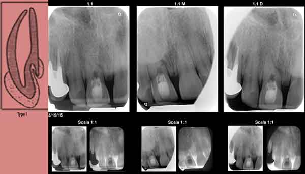 tratament-endodontic-dinte-atipic-dens-in-dente_1